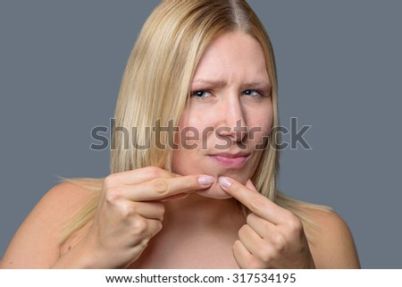 Woman squeezing a pimple, spot zit or blackhead on her chin with her fingers, close up of her face and hands over grey - stock photo
