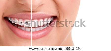 woman teeth and smile. Close up,half with braces  - stock photo