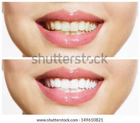 Woman Teeth Before and After Whitening. Over white background. Happy smiling woman. Dental health Concept. Oral Care - stock photo