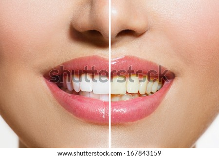 Woman Teeth Before and After Whitening. Over white background. Happy smiling woman. Dental health Concept. Oral Care. - stock photo