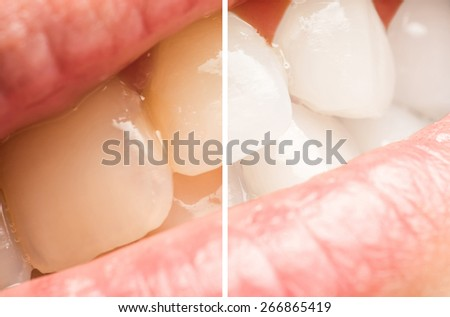 Woman Teeth Before And After Whitening Procedure At Dentist Clinic - stock photo