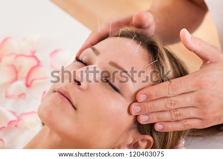 Woman undergoing acupuncture treatment with a line of fine needles inserted into the skin of her forehead