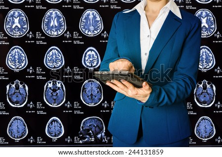 Woman using tablet pc on background X-ray image of the brain computed tomography  - stock photo