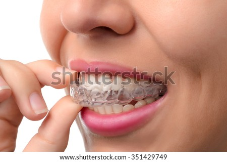 Woman wearing orthodontic silicone trainer. Invisible braces - stock photo