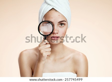 Woman with a pimply face holding magnifying glass. Woman skin care concept / photos of ugly problem skin brunette girl on beige background   - stock photo