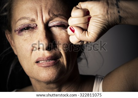woman with an injured eye
