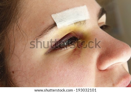 Woman with black eye after an accident or injured - stock photo