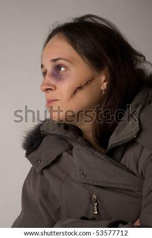 Woman with halloween makeup (fake cicatrice and bruise) - stock photo