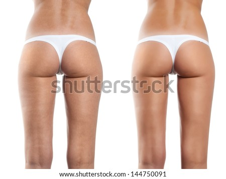 Woman With Perfect Shape; Beautiful Buttocks Before Celulite Tratement On White Background.