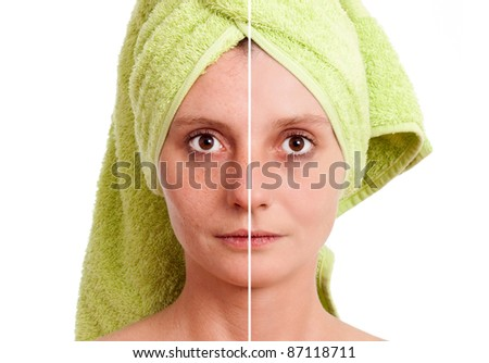 Woman with spotty skin with deep pores and blackhead and healed soft skin - stock photo