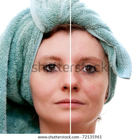 Woman with spotty skin with deep pores and blackhead and healed soft skin - before and after - stock photo
