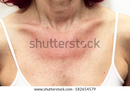 Woman with sunburns and Allergic reaction after unprotected sunbathing, acute state  - stock photo