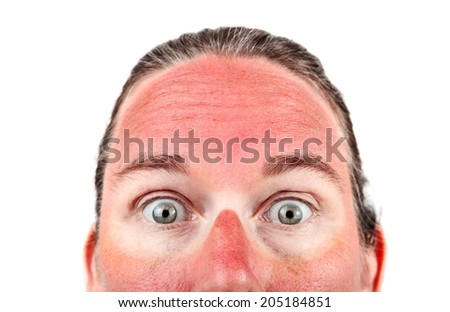 Woman with Sunglasess sunburn - stock photo