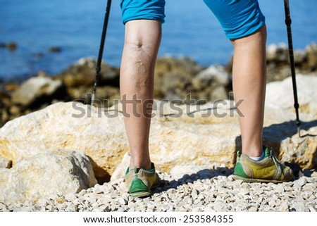 Woman with varicose veins on a leg walking using trekking poles - stock photo