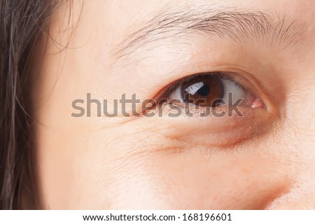 Woman wrinkles and under eye bag - stock photo