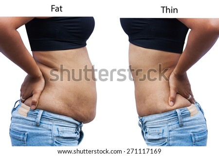 women body  fat and Thin after weight loss - stock photo