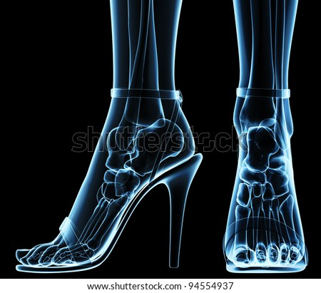 women's feet under x-ray - stock photo
