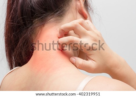 Women scratch the itch with hand ,neck, itching, Concept with Healthcare And Medicine.