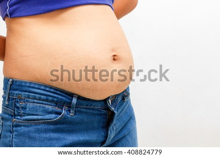 Women with paunch and Abdominal stripes after having a child  concept of weight loss and health care.
