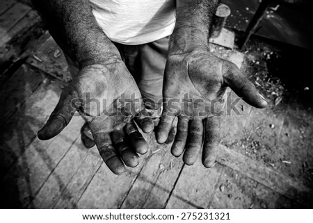 Worker is showing his chapped hands, dirty and injured palms. - stock photo