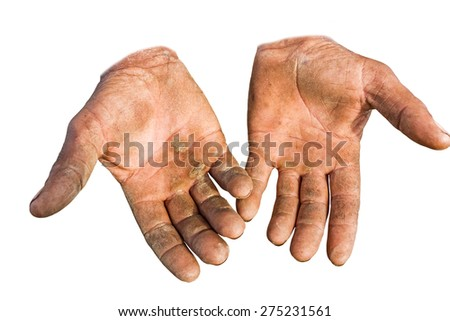 Worker is showing his chapped hands, dirty and injured palms, against white background. - stock photo