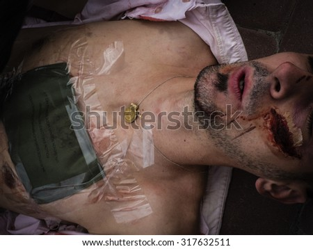 wounded man lying on the ground - stock photo