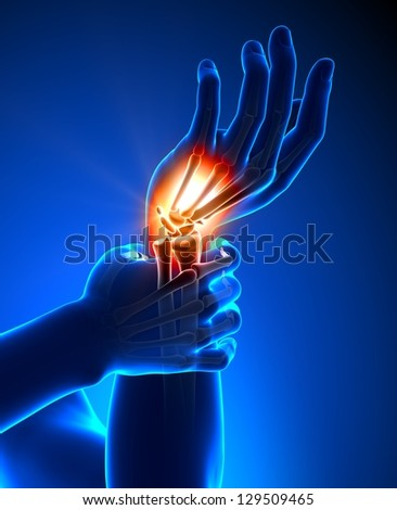 Wrist pain - detail - stock photo