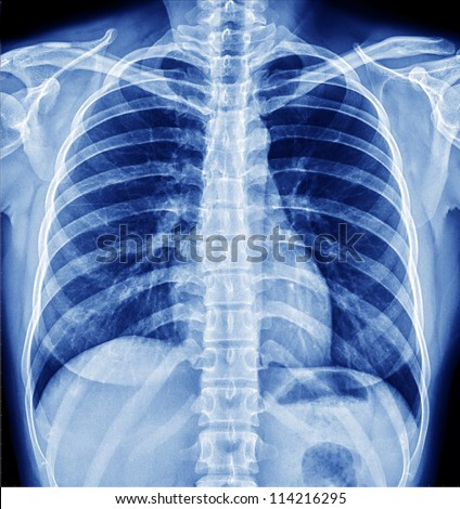 x-ray - stock photo
