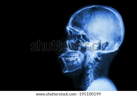 X-ray asian skull and blank area at left side - stock photo