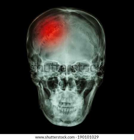 X-ray asian skull (Thai people) and headache - stock photo