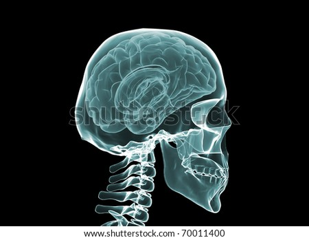 X-ray brain and skeleton - stock photo