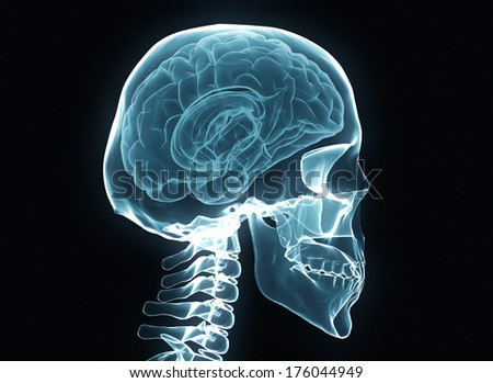 X-ray brain and skeleton isolated on black - stock photo