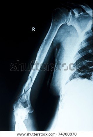 X ray  Broken arm - stock photo
