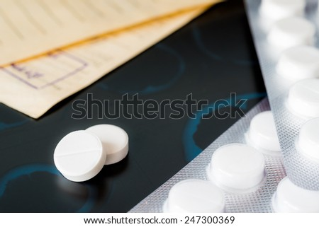 X-ray examination, a prescription and tablets for treatment of disease - stock photo