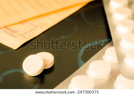 X-ray examination, a prescription and tablets for treatment of disease. In yellow tones - stock photo