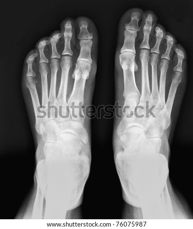 X-ray feet / Many others X-ray images in my portfolio. - stock photo