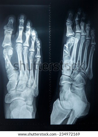 X-ray feet with metal sticks