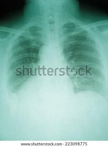 X-ray film - stock photo