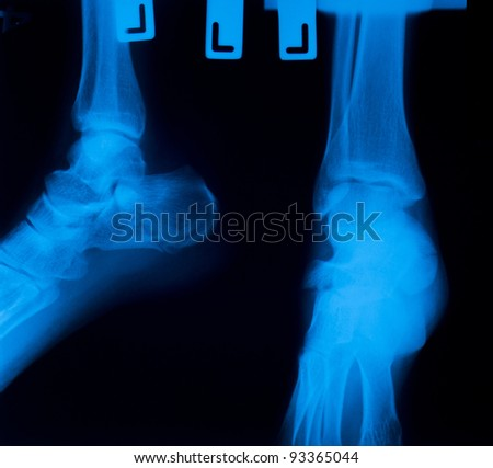 X ray film  of ankle  fracture - stock photo