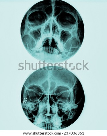 X-Ray film of face - frontal, looking up