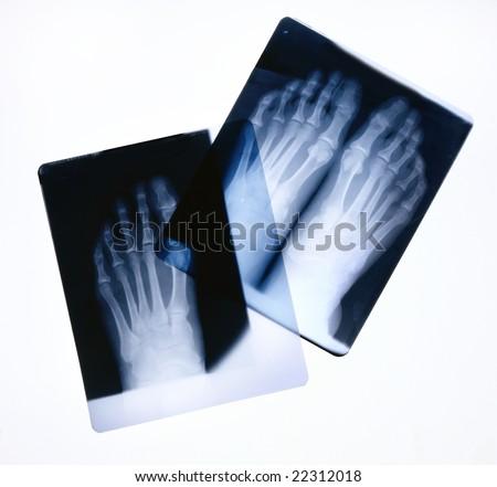 X-ray film of feet on a light box - stock photo