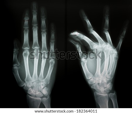 X-RAY film of second intermediate phalangeal bone fracture