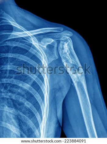 X-ray film of shoulder - stock photo