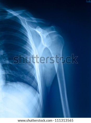 X-ray film of shoulder fracture. - stock photo