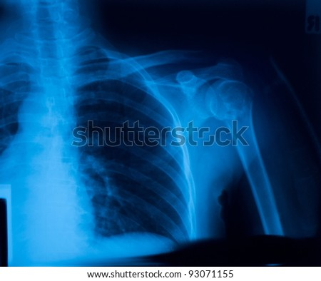 X-ray film of shoulder fracture - stock photo