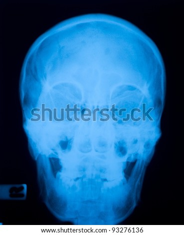 X ray film  of skull fracture