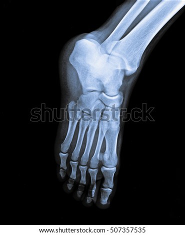 x ray foot side view