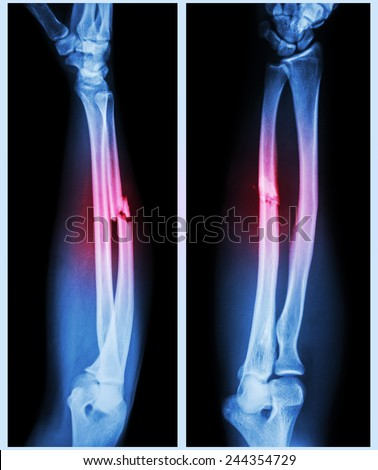 X-ray forearm (  front , side ) : Comminuted fracture shaft of ulnar bone ( forearm bone ) - stock photo