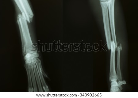 X-ray from broken foreleg of a dog  - stock photo
