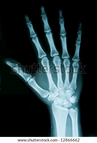 X-ray hand - stock photo